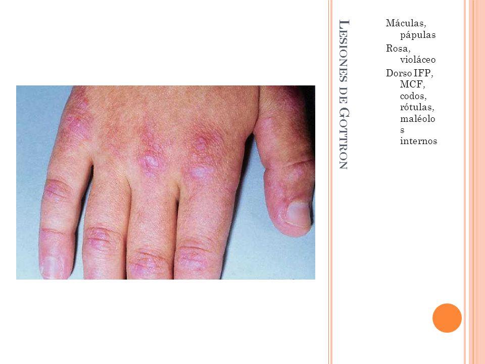 L ESIONES DE G OTTRON Máculas, pápulas Rosa, violáceo Dorso IFP, MCF, codos, rótulas, maléolo s internos