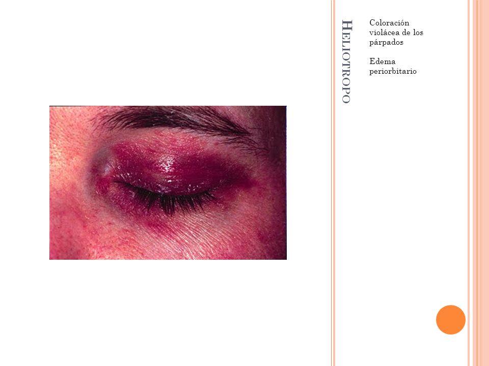 H ELIOTROPO Coloración violácea de los párpados Edema periorbitario