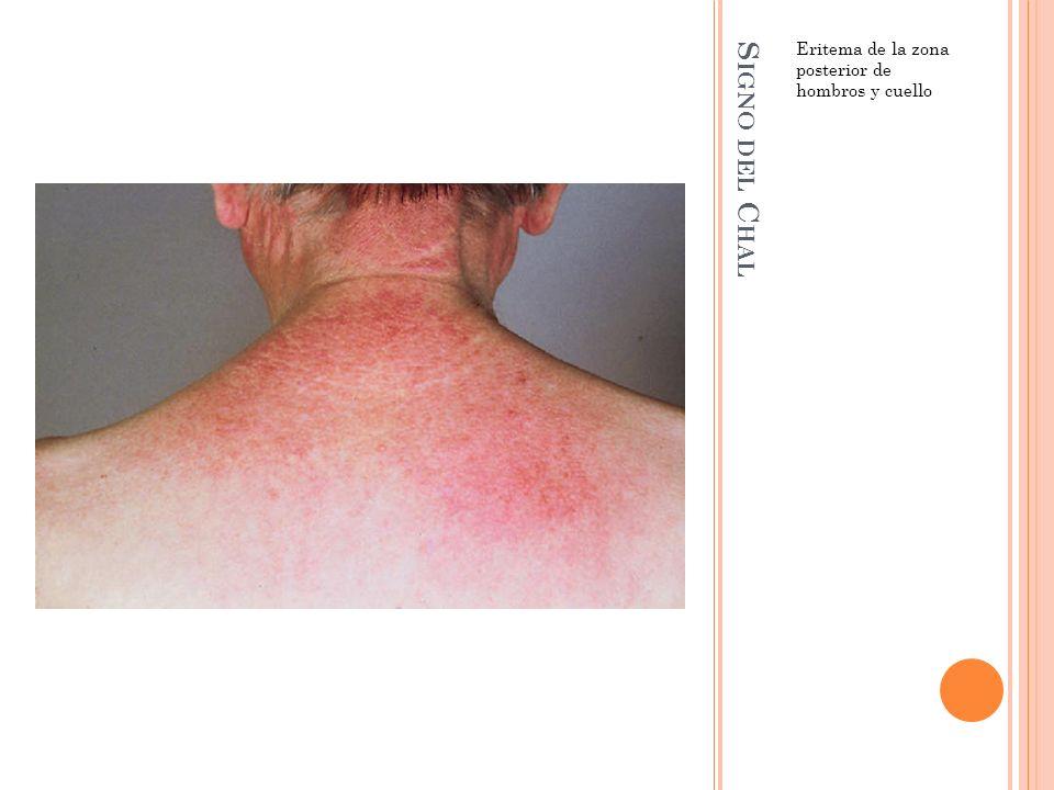S IGNO DEL C HAL Eritema de la zona posterior de hombros y cuello