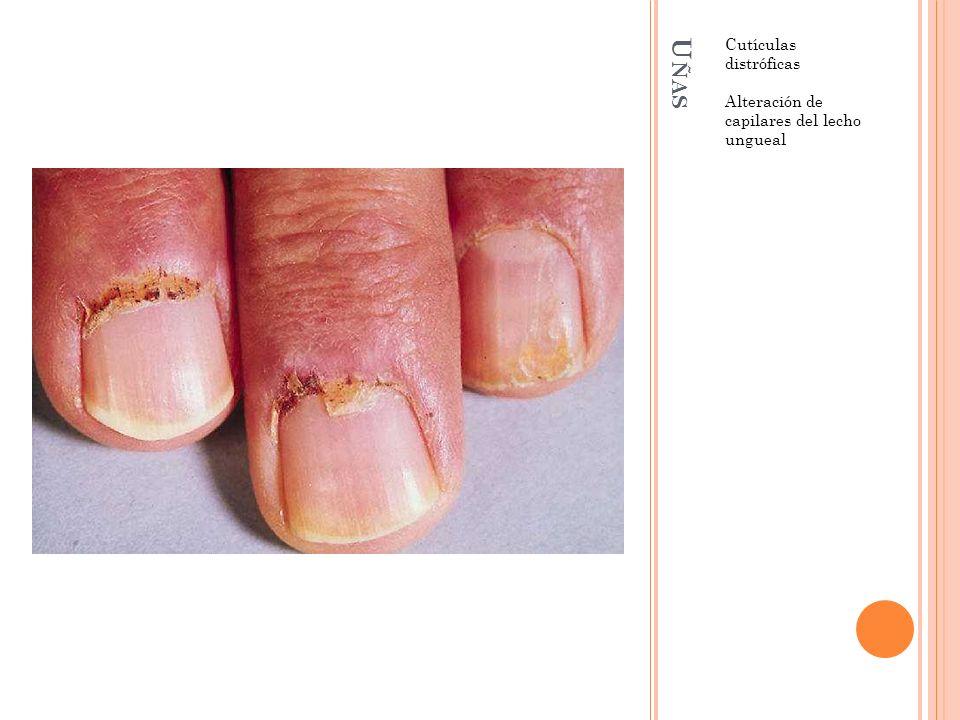 U ÑAS Cutículas distróficas Alteración de capilares del lecho ungueal