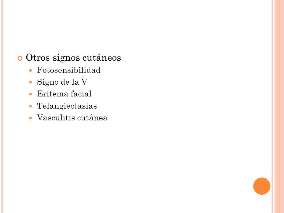 Otros signos cutáneos Fotosensibilidad Signo de la V Eritema facial Telangiectasias Vasculitis cutánea