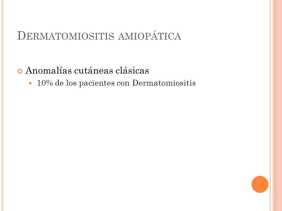 D ERMATOMIOSITIS AMIOPÁTICA Anomalías cutáneas clásicas 10% de los pacientes con Dermatomiositis