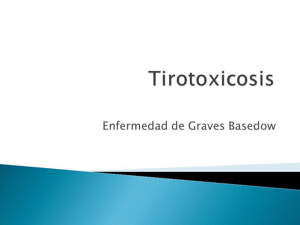 Enfermedad de Graves Basedow