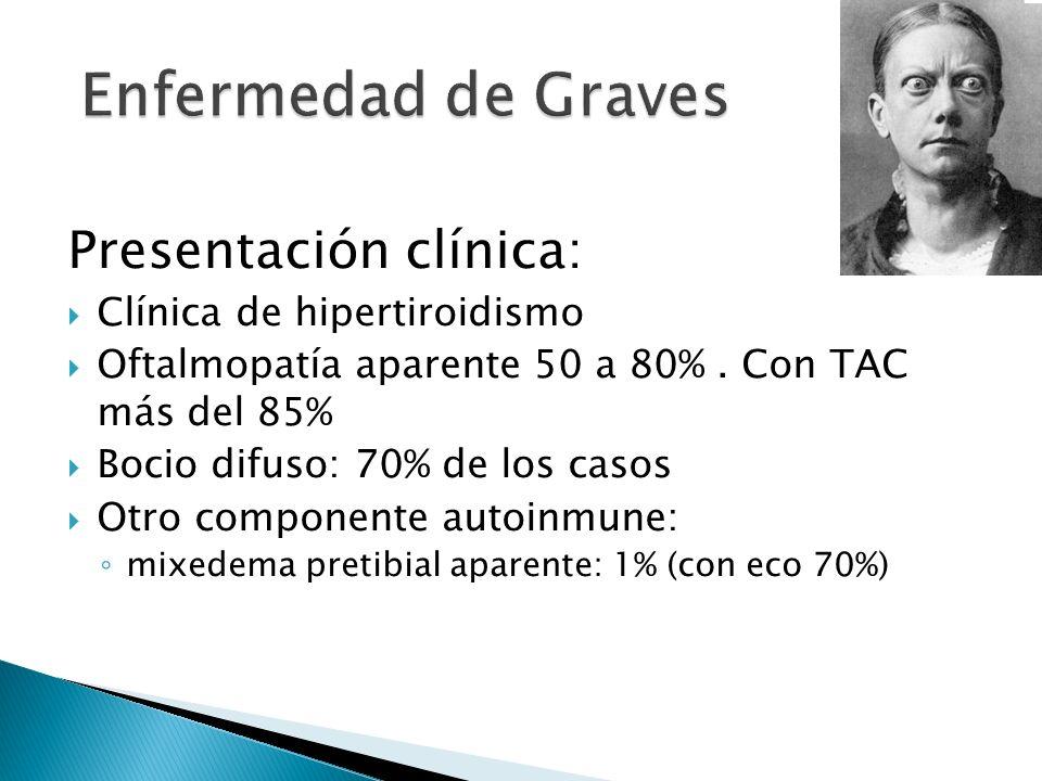 Presentación clínica: Clínica de hipertiroidismo Oftalmopatía aparente 50 a 80%. Con TAC más del 85% Bocio difuso: 70% de los casos Otro componente au
