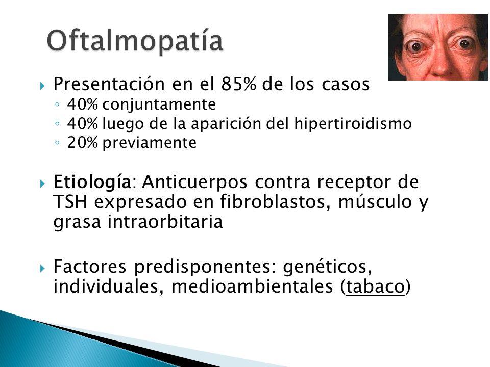 Presentación en el 85% de los casos 40% conjuntamente 40% luego de la aparición del hipertiroidismo 20% previamente Etiología: Anticuerpos contra rece