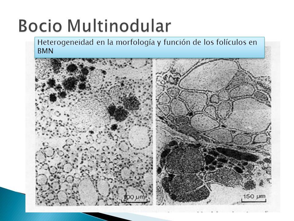 Heterogeneidad en la morfología y función de los folículos en BMN