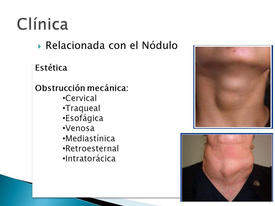 Relacionada con el Nódulo Relacionada con la sobreproducción de HT Estética Obstrucción mecánica: Cervical Traqueal Esofágica Venosa Mediastínica Retr