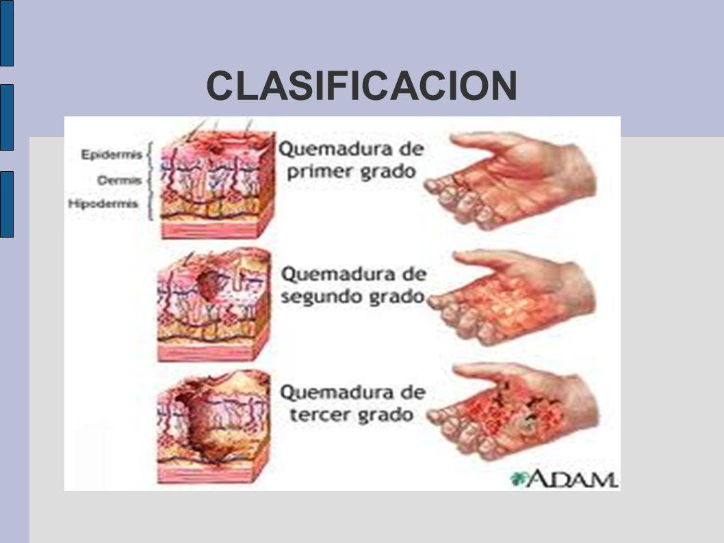 GOLPE DE CALOR Etiología: Accidental.Homicida Agentes predisponentes: Actividad muscular.