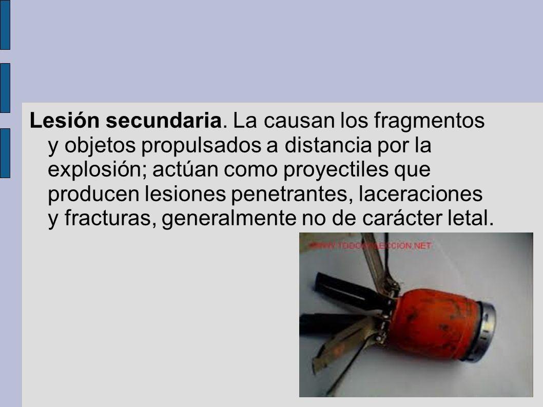 Lesión secundaria. La causan los fragmentos y objetos propulsados a distancia por la explosión; actúan como proyectiles que producen lesiones penetran