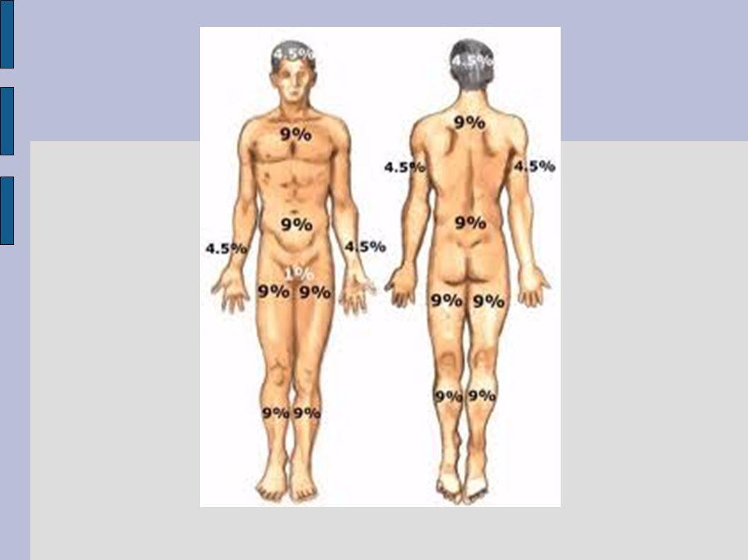 HALLAZGOS CADAVERICOS HISTORIA CLINICA hiperpirexia, piel seca y caliente, sin sudoración EXAMEN DEL CADAVER Corazón: rígido, equimosis.