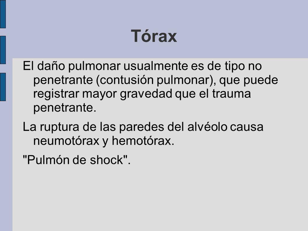Tórax El daño pulmonar usualmente es de tipo no penetrante (contusión pulmonar), que puede registrar mayor gravedad que el trauma penetrante. La ruptu