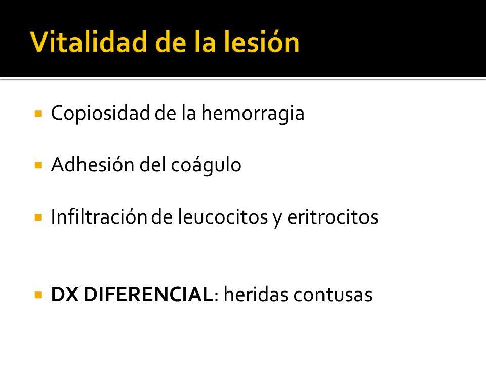 Copiosidad de la hemorragia Adhesión del coágulo Infiltración de leucocitos y eritrocitos DX DIFERENCIAL: heridas contusas