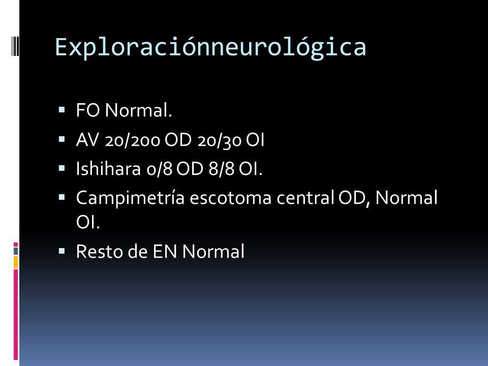 Exploraciónneurológica FO Normal. AV 20/200 OD 20/30 OI Ishihara 0/8 OD 8/8 OI. Campimetría escotoma central OD, Normal OI. Resto de EN Normal