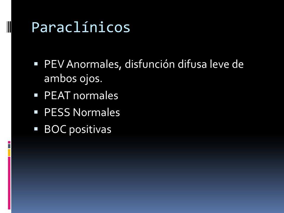 Paraclínicos PEV Anormales, disfunción difusa leve de ambos ojos. PEAT normales PESS Normales BOC positivas