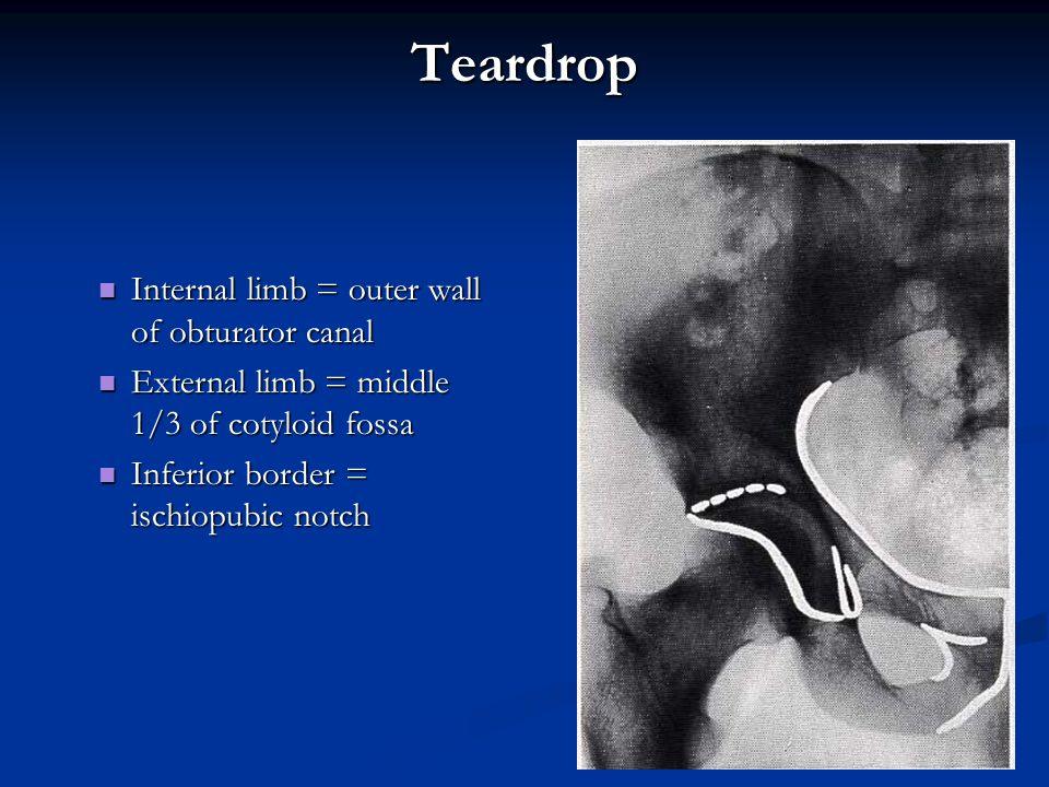 Teardrop Internal limb = outer wall of obturator canal Internal limb = outer wall of obturator canal External limb = middle 1/3 of cotyloid fossa Exte