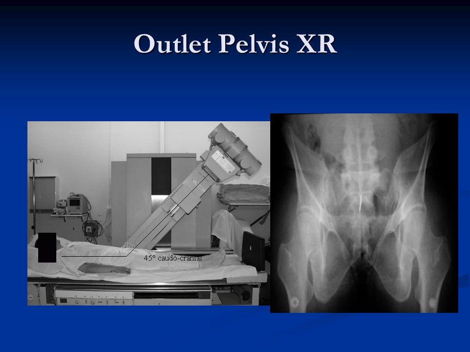 Outlet Pelvis XR