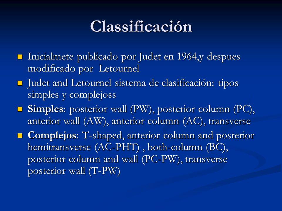 Classificación Inicialmete publicado por Judet en 1964,y despues modificado por Letournel Inicialmete publicado por Judet en 1964,y despues modificado
