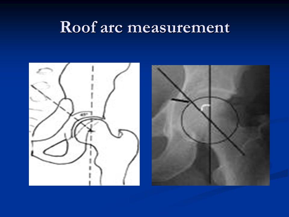 Roof arc measurement
