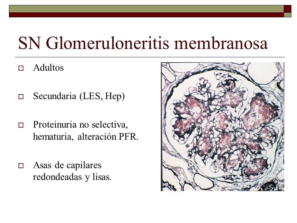 SN Glomeruloneritis membranosa Adultos Secundaria (LES, Hep) Proteinuria no selectiva, hematuria, alteración PFR. Asas de capilares redondeadas y lisa