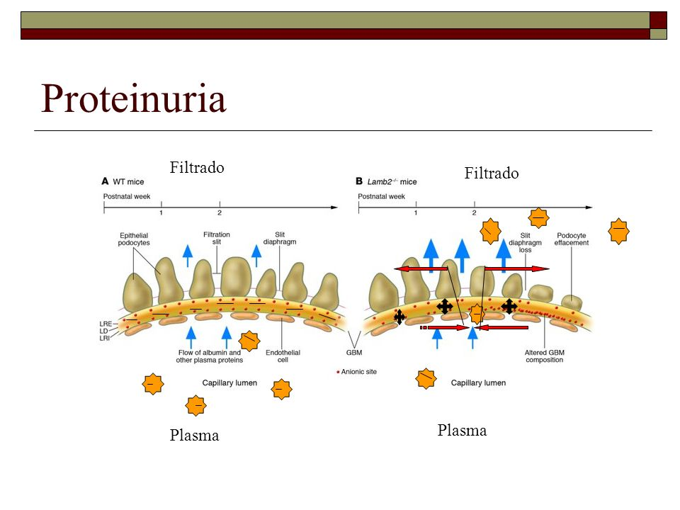 Proteinuria Plasma Filtrado