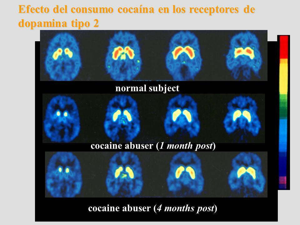 normal subject cocaine abuser (1 month post) cocaine abuser (4 months post) Efecto del consumo cocaína en los receptores de dopamina tipo 2