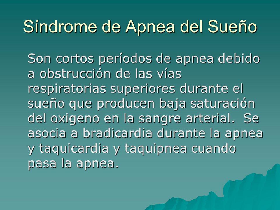 Síndrome de Apnea del Sueño Son cortos períodos de apnea debido a obstrucción de las vías respiratorias superiores durante el sueño que producen baja