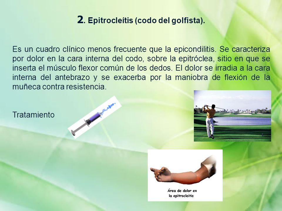 2. Epitrocleítis (codo del golfista). Es un cuadro clínico menos frecuente que la epicondilitis. Se caracteriza por dolor en la cara interna del codo,
