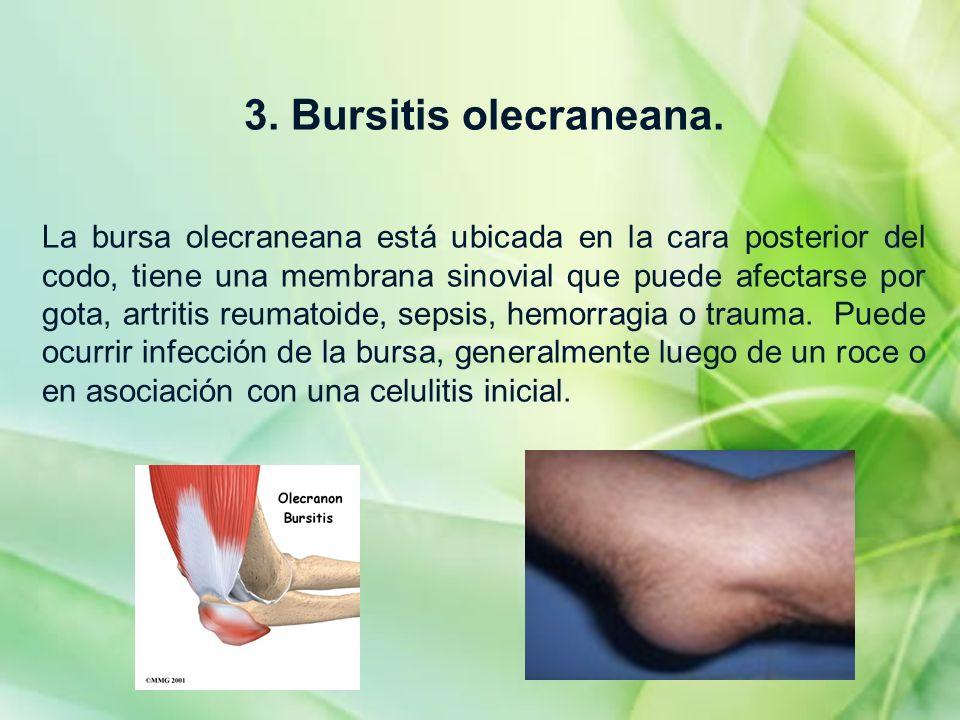 3. Bursitis olecraneana. La bursa olecraneana está ubicada en la cara posterior del codo, tiene una membrana sinovial que puede afectarse por gota, ar
