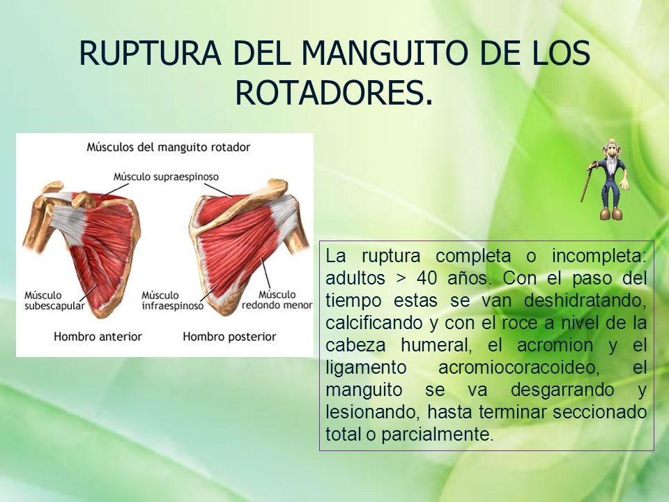 RUPTURA DEL MANGUITO DE LOS ROTADORES. La ruptura completa o incompleta: adultos > 40 años. Con el paso del tiempo estas se van deshidratando, calcifi