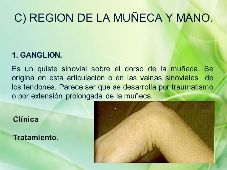C) REGION DE LA MUÑECA Y MANO. 1. GANGLION. Es un quiste sinovial sobre el dorso de la muñeca. Se origina en esta articulación o en las vainas sinovia