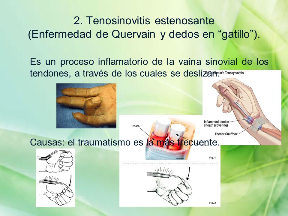 2. Tenosinovitis estenosante (Enfermedad de Quervain y dedos en gatillo). Es un proceso inflamatorio de la vaina sinovial de los tendones, a través de