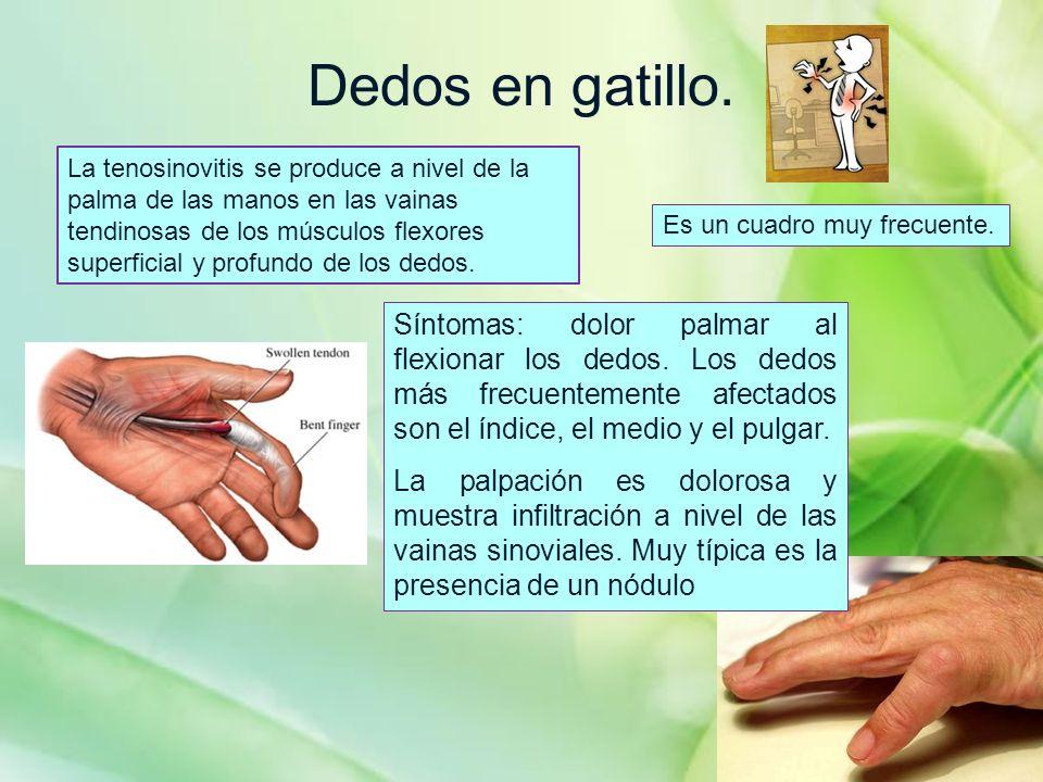 Dedos en gatillo. Síntomas: dolor palmar al flexionar los dedos. Los dedos más frecuentemente afectados son el índice, el medio y el pulgar. La palpac