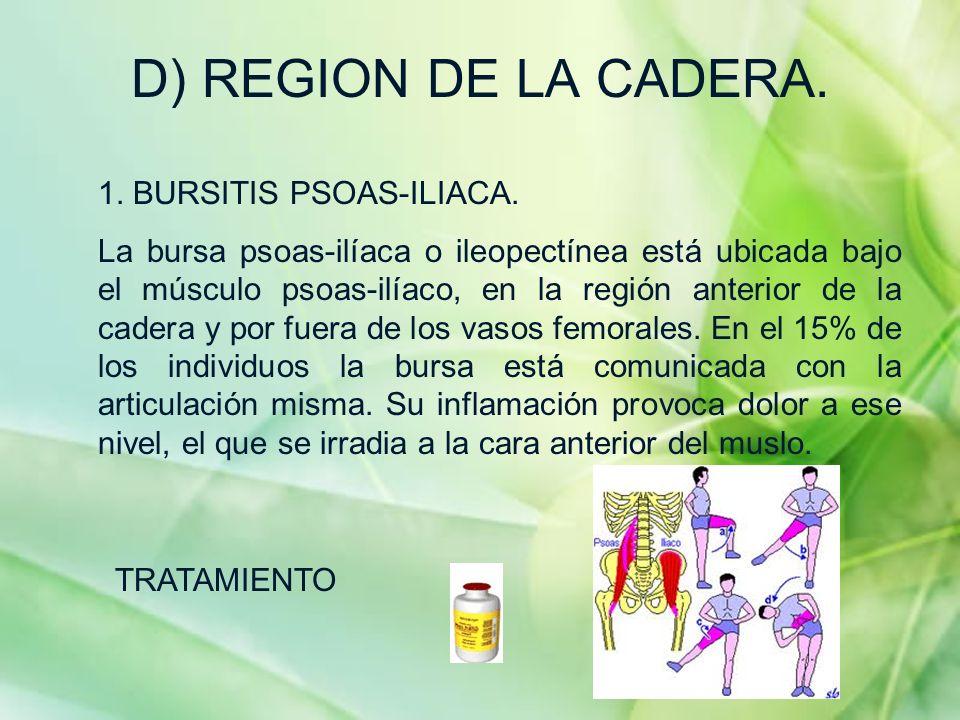 D) REGION DE LA CADERA. 1. BURSITIS PSOAS-ILIACA. La bursa psoas-ilíaca o ileopectínea está ubicada bajo el músculo psoas-ilíaco, en la región anterio