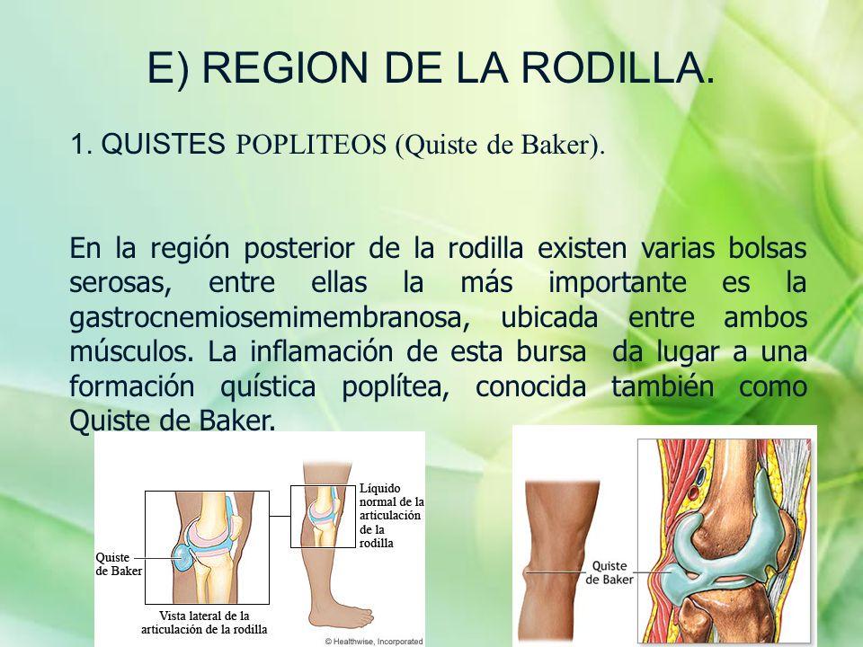 E) REGION DE LA RODILLA. 1. QUISTES POPLITEOS (Quiste de Baker). En la región posterior de la rodilla existen varias bolsas serosas, entre ellas la má