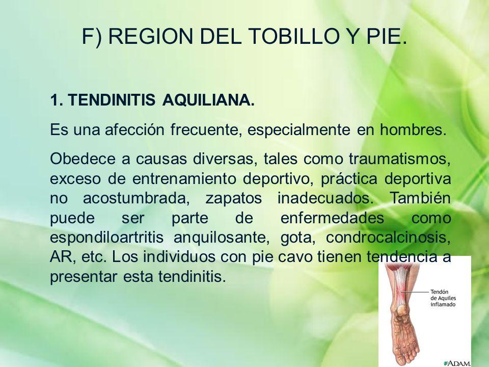 F) REGION DEL TOBILLO Y PIE. 1. TENDINITIS AQUILIANA. Es una afección frecuente, especialmente en hombres. Obedece a causas diversas, tales como traum
