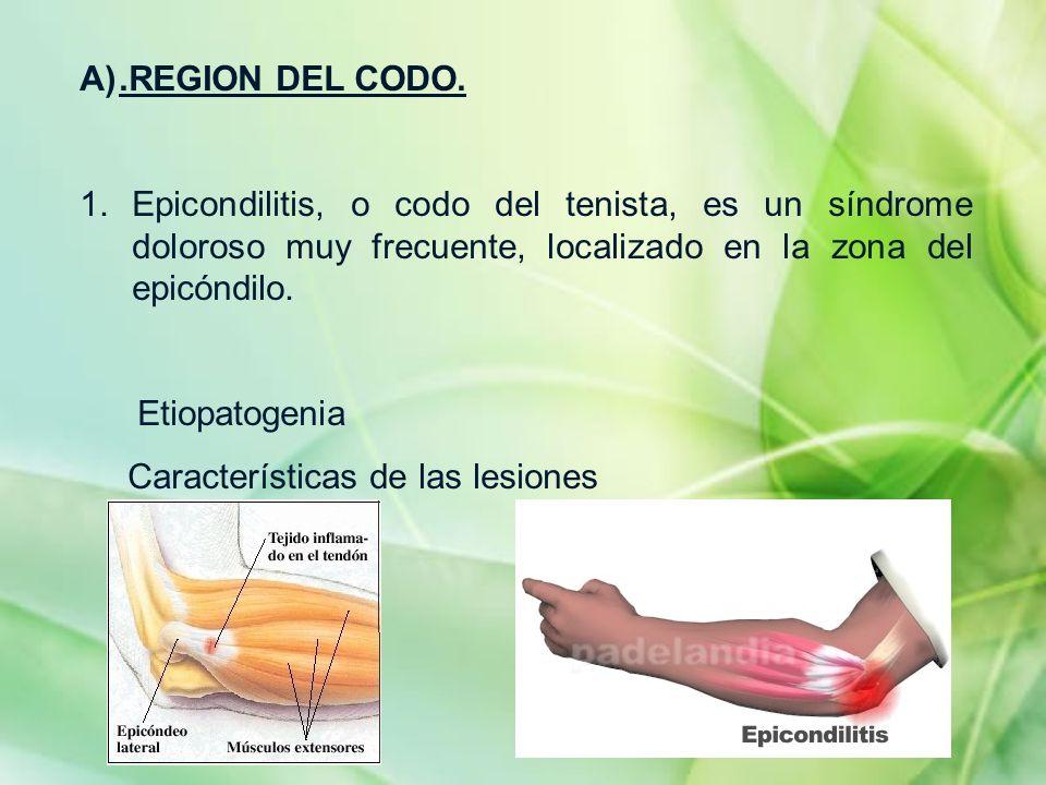 A).REGION DEL CODO. 1.Epicondilitis, o codo del tenista, es un síndrome doloroso muy frecuente, localizado en la zona del epicóndilo. Etiopatogenia Ca