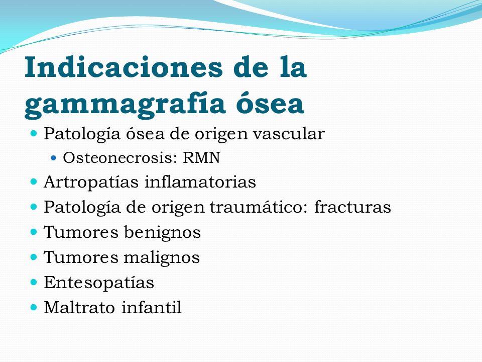 Indicaciones de la gammagrafía ósea Patología ósea de origen vascular Osteonecrosis: RMN Artropatías inflamatorias Patología de origen traumático: fra