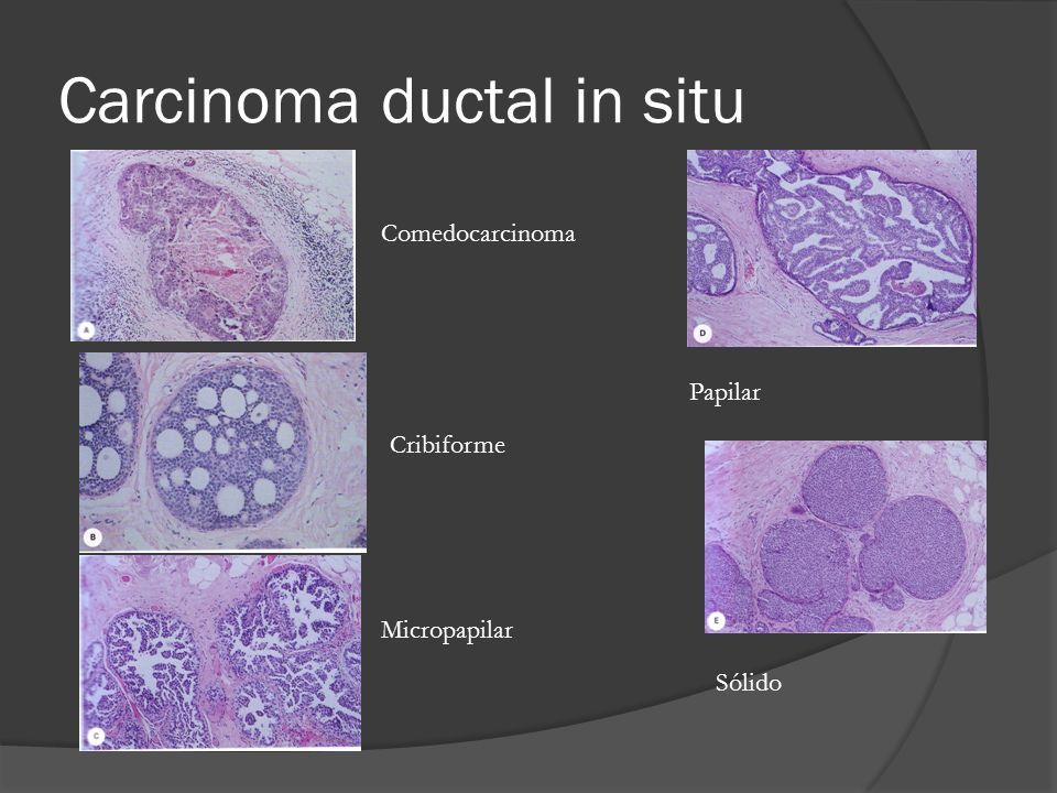 Carcinoma ductal in situ Papilar Sólido Comedocarcinoma Cribiforme Micropapilar