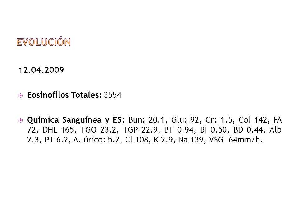 12.04.2009 Eosinofilos Totales: 3554 Química Sanguínea y ES: Bun: 20.1, Glu: 92, Cr: 1.5, Col 142, FA 72, DHL 165, TGO 23.2, TGP 22.9, BT 0.94, BI 0.5