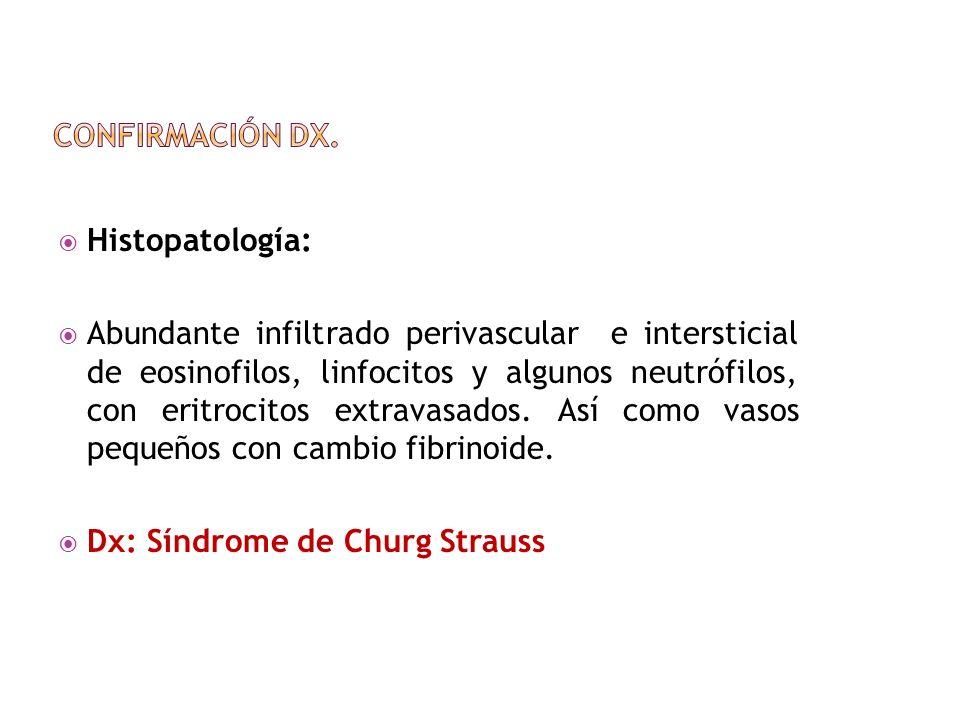 Histopatología: Abundante infiltrado perivascular e intersticial de eosinofilos, linfocitos y algunos neutrófilos, con eritrocitos extravasados. Así c