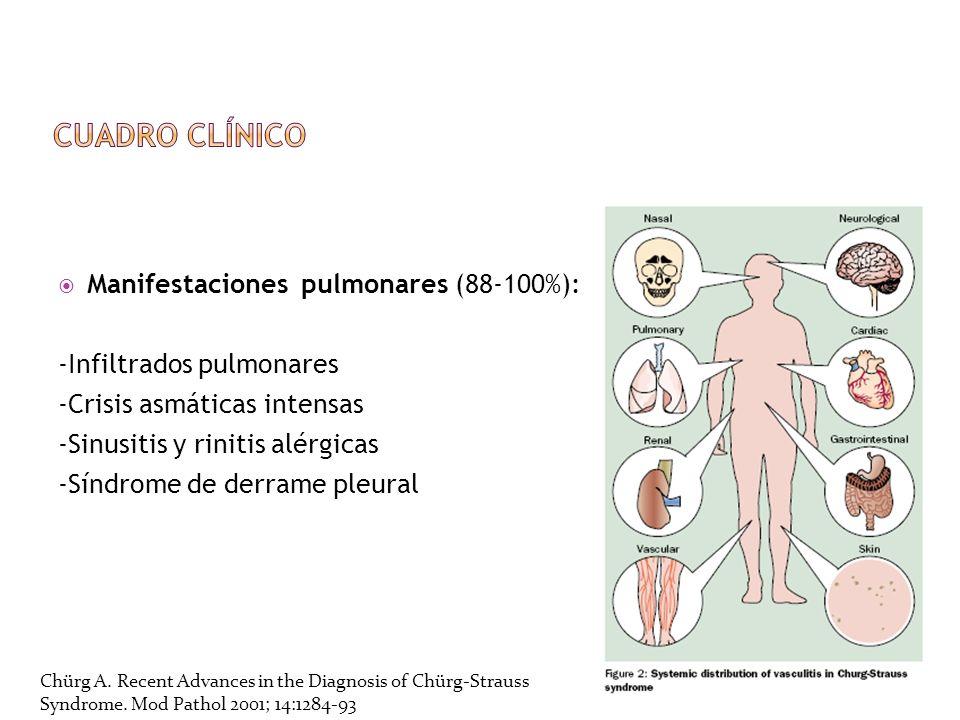 Manifestaciones pulmonares (88-100%): -Infiltrados pulmonares -Crisis asmáticas intensas -Sinusitis y rinitis alérgicas -Síndrome de derrame pleural C