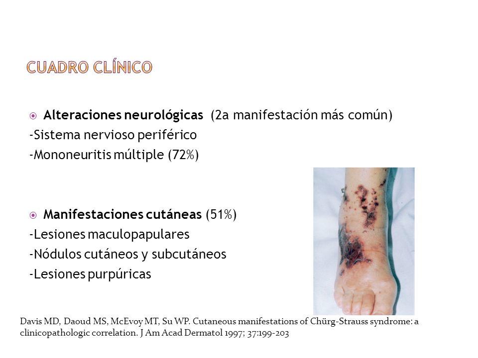 Alteraciones neurológicas (2a manifestación más común) -Sistema nervioso periférico -Mononeuritis múltiple (72%) Manifestaciones cutáneas (51%) -Lesio