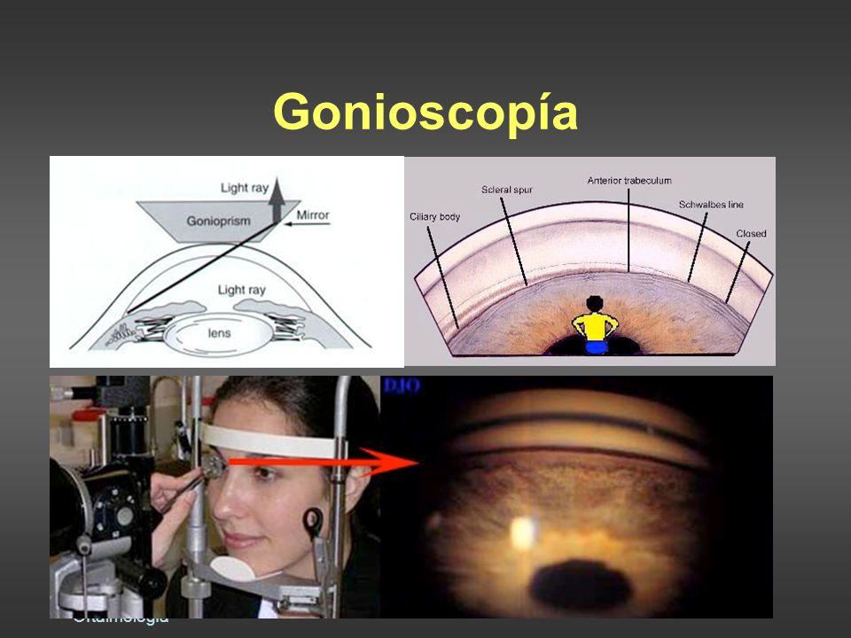 Dra. Raquel Benavides Oftalmología Gonioscopía
