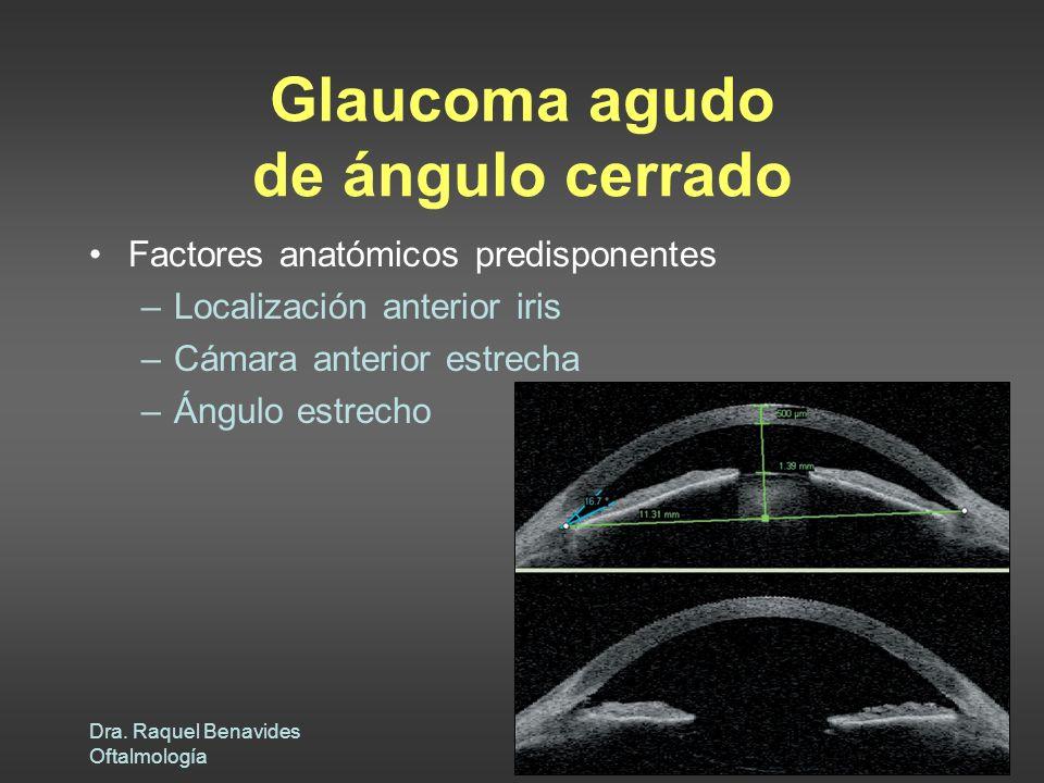 Dra. Raquel Benavides Oftalmología Glaucoma agudo de ángulo cerrado Factores anatómicos predisponentes –Localización anterior iris –Cámara anterior es