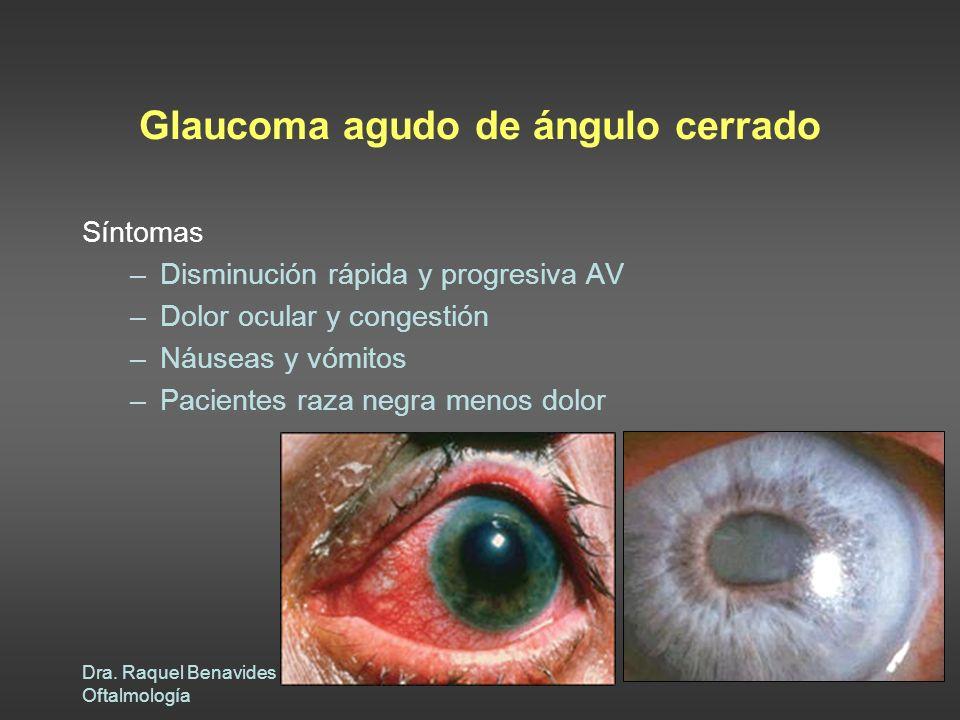 Dra. Raquel Benavides Oftalmología Glaucoma agudo de ángulo cerrado Síntomas –Disminución rápida y progresiva AV –Dolor ocular y congestión –Náuseas y