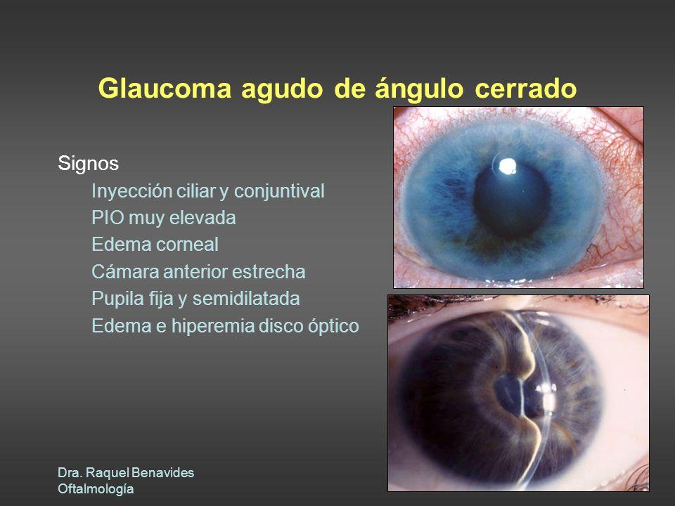 Dra. Raquel Benavides Oftalmología Glaucoma agudo de ángulo cerrado Signos Inyección ciliar y conjuntival PIO muy elevada Edema corneal Cámara anterio
