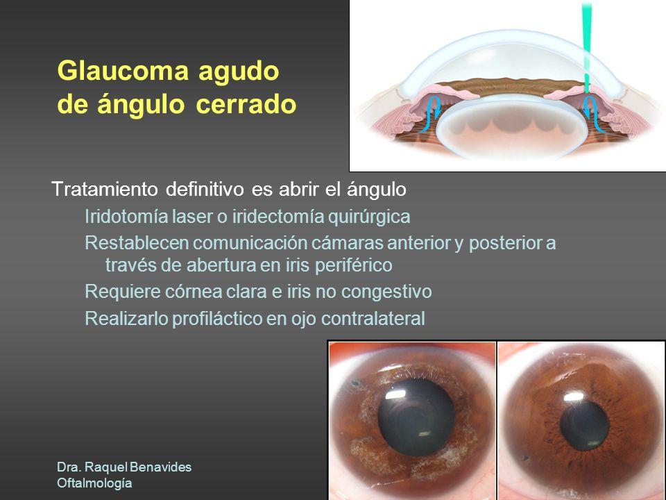 Dra. Raquel Benavides Oftalmología Glaucoma agudo de ángulo cerrado Tratamiento definitivo es abrir el ángulo Iridotomía laser o iridectomía quirúrgic