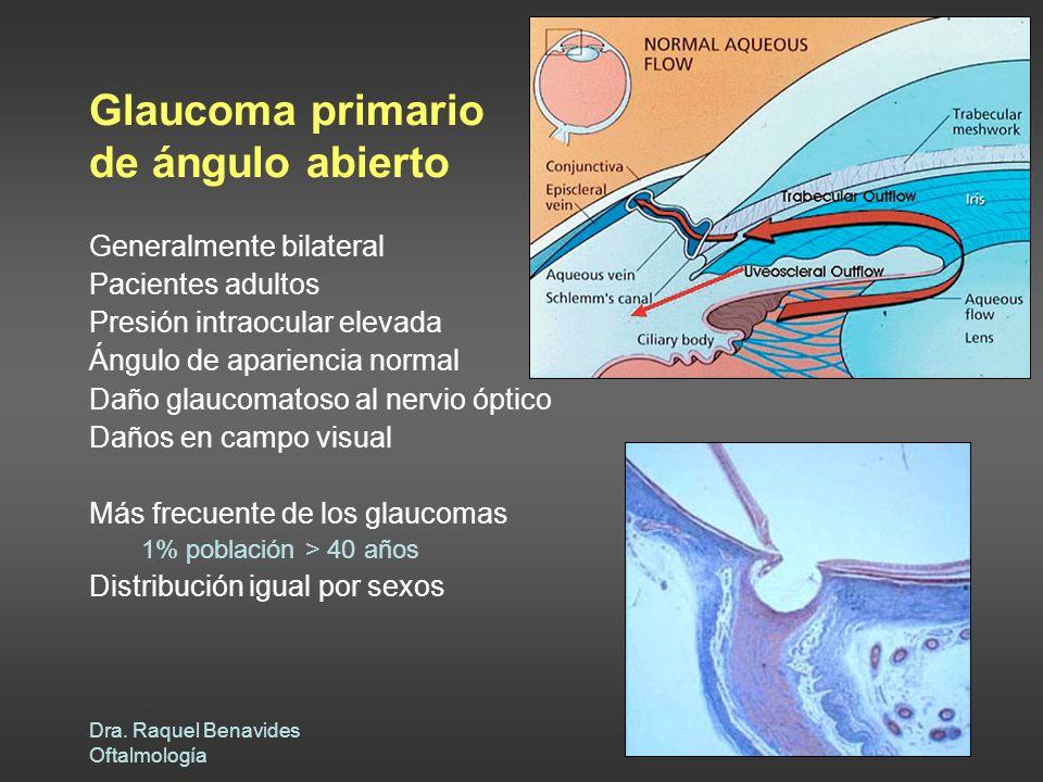 Dra. Raquel Benavides Oftalmología Glaucoma primario de ángulo abierto Generalmente bilateral Pacientes adultos Presión intraocular elevada Ángulo de