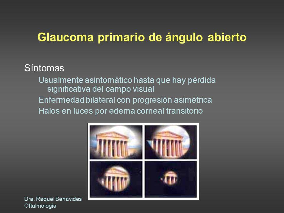 Dra. Raquel Benavides Oftalmología Glaucoma primario de ángulo abierto Síntomas Usualmente asintomático hasta que hay pérdida significativa del campo