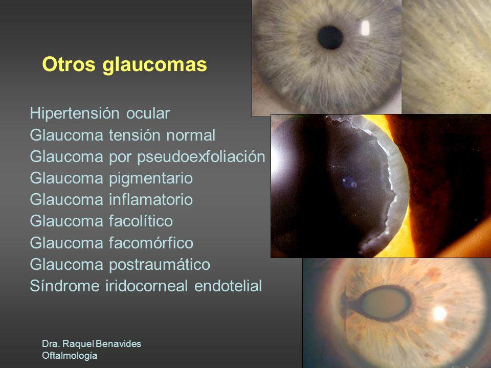 Dra. Raquel Benavides Oftalmología Otros glaucomas Hipertensión ocular Glaucoma tensión normal Glaucoma por pseudoexfoliación Glaucoma pigmentario Gla